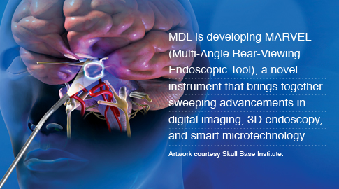MDL is developing MARVEL (Multi-Angle Rear-Viewing Endoscopic Tool), a novel instrument that brings together sweeping advancements in digital imaging, 3D endoscopy, and smart microtechnology. Artwork courtesy Skull Base Institute.